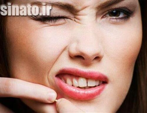 درمان جوش صورت با وازلین