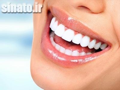 وازلین برای دندان