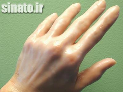 پارافین تراپی در درمان آرتروز