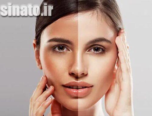 سفید و روشن شدن پوست صورت و دست با ۱۶ روش خانگی