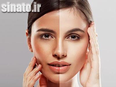 روشن شدن پوست